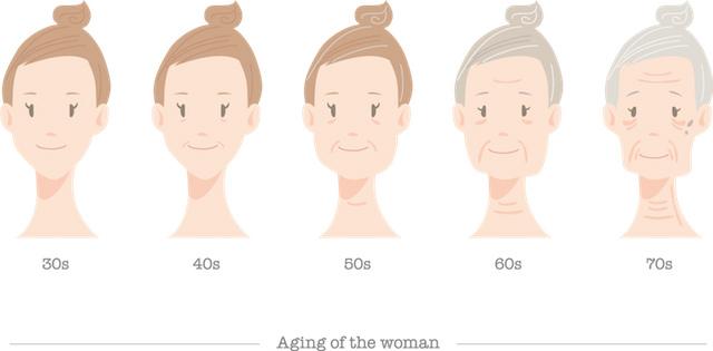加齢による頬のたるみ